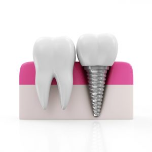 Dental implants can save your oral health.