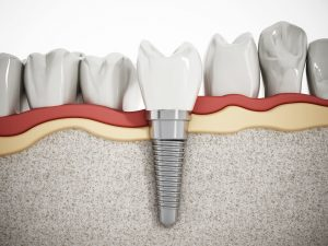 diagram dental implants