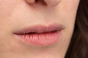 woman suffering from winter mouth issues